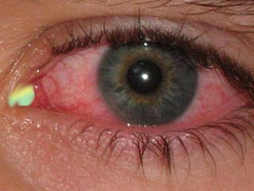 Green Mucus in Eye